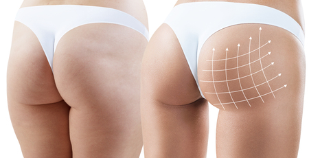 Photo pour Female buttocks with arrows grid before and after plastic surgery. Isolated on white. - image libre de droit
