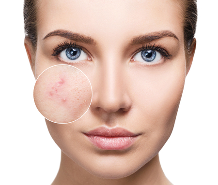 Photo for Young woman with acne skin in zoom circle. - Royalty Free Image