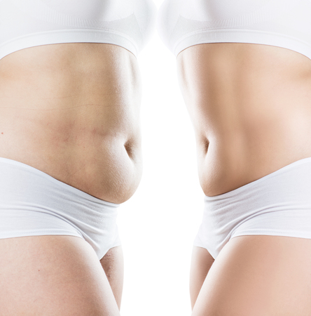 Photo for Womans body before and after weight loss. - Royalty Free Image