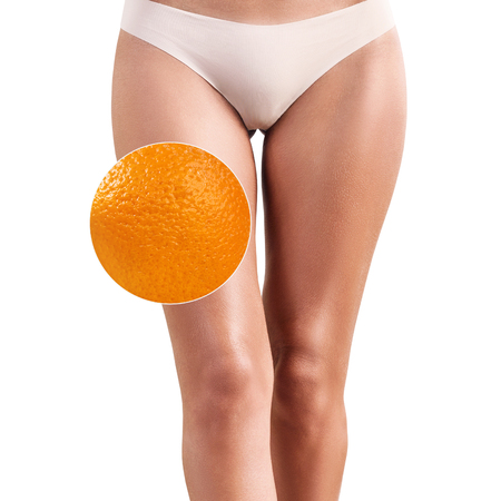 Photo for Female buttocks with zoom circle shows orange peel - Royalty Free Image