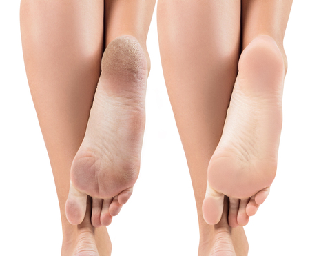 Photo pour Feet with dry skin before and after treatment. - image libre de droit