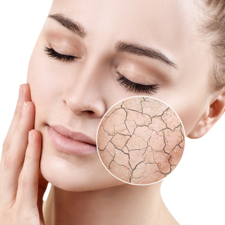 Photo pour Zoom circle shows dry facial skin before moistening. - image libre de droit