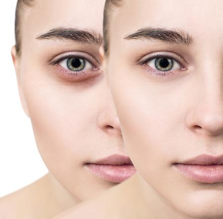 Foto de Female eyes with bruises under eyes before and after cosmetic treatment. - Imagen libre de derechos