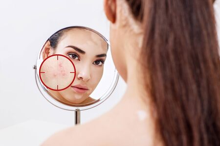 Photo for Young woman with acne skin in red aim. - Royalty Free Image