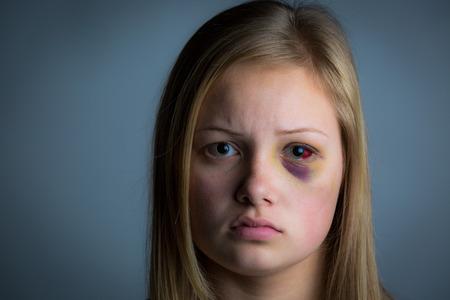 Foto de Young blonde girl with heavy bruising and swelling - Imagen libre de derechos