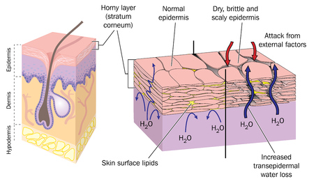 Illustration pour Section through skin showing normal epidermis and skin surface structure resulting in water loss and dry, brittle, scaly skin.  - image libre de droit