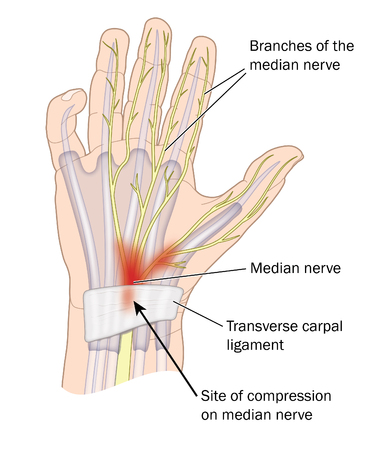 Site of compression of the median nerve in carpal tunnel syndrome.