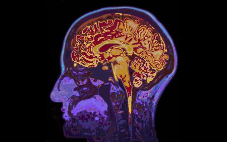 Photo pour MRI Image Of Head Showing Brain - image libre de droit