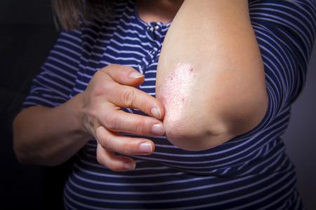 Foto de Psoriasis on lady's elbow on dark background. Close up - Imagen libre de derechos