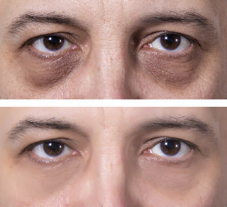 Photo pour Adult's man eyes with dark rings. Treatment - BEFORE and AFTER. Skin treatment - image libre de droit