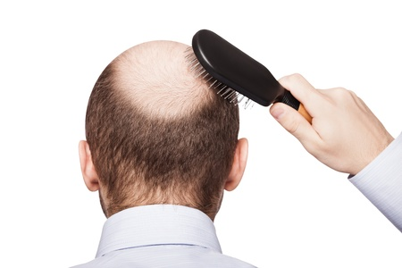 Foto de Human alopecia or hair loss - adult man hand holding comb on bald head - Imagen libre de derechos
