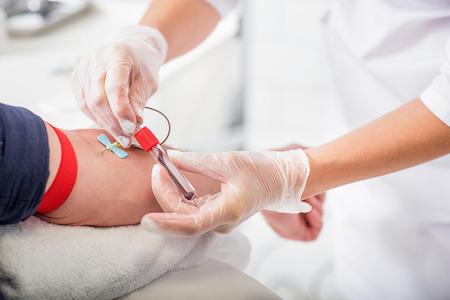 Foto de Close up of doctor hands taking blood from male vein into tube by catheter - Imagen libre de derechos