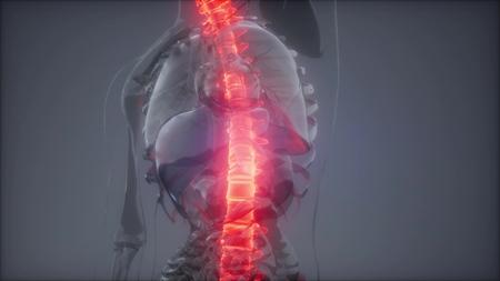 Foto de Hurt Spine. Male Backbone. Backache, Headache - Vertebrae Pain - Imagen libre de derechos