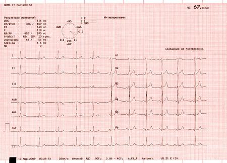 Foto de The graphs of an electrocardiogram - Imagen libre de derechos