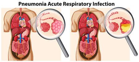 Illustration pour Pneumonia Acute Respiratory Infection illustration - image libre de droit