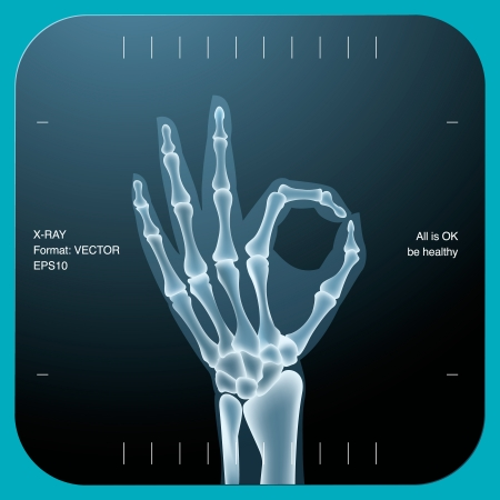 Illustration pour X-ray of both human hand (OK!), vector Eps10 illustration. - image libre de droit