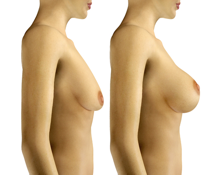 Photo pour 3d rendered illustration Breast Enlargement with Uplift surgery  before and after - image libre de droit