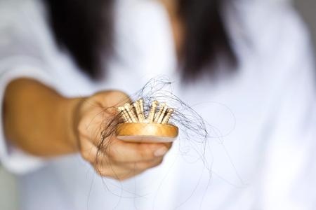Foto de woman losing hair on hairbrush in hand, soft focus - Imagen libre de derechos