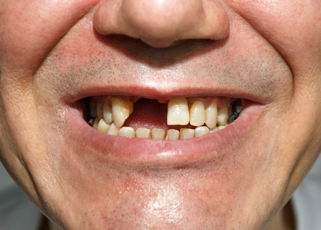 Photo for Men smile without two front teeth - Royalty Free Image
