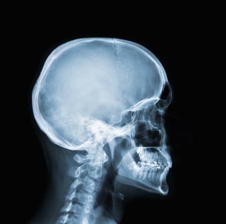 X-ray of head