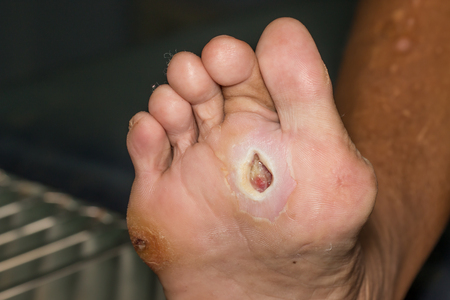 Foto per wound of diabetic foot - Immagine Royalty Free