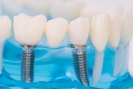 Foto de Close up of dental model  with implantation - Imagen libre de derechos