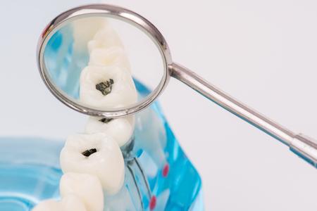 Foto de miniature people use dental tool clean tooth or dental model,medical concept - Imagen libre de derechos