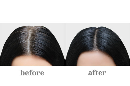 Foto de Head of a girl with black gray hair. Hair coloring. Before and after. - Imagen libre de derechos