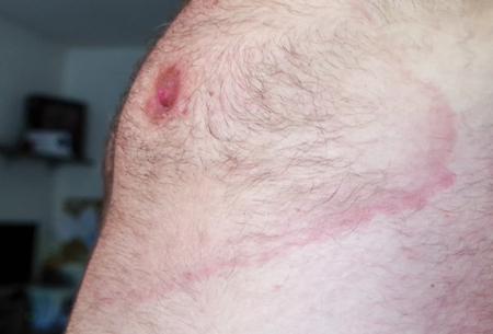 Foto de Lyme borreliosis - infectious disease - erythema migrans - Imagen libre de derechos