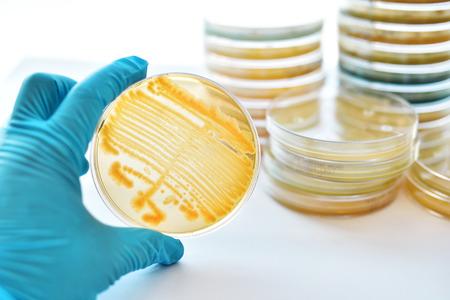 Foto de Colonies of bacteria in petri dish - Imagen libre de derechos