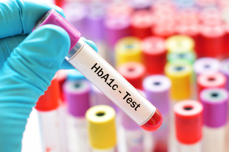Photo for Blood sample for HbA1c test, diabetes diagnosis - Royalty Free Image