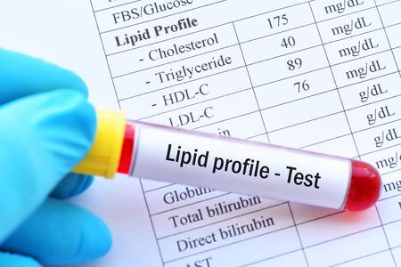 Photo pour Normal lipid profile test result with blood sample - image libre de droit