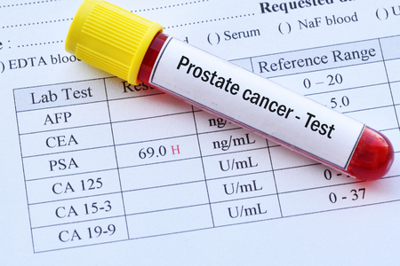 Photo pour Abnormal high PSA test result with blood sample tube - image libre de droit
