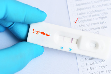 Foto de Legionella positive test result by using rapid test cassette - Imagen libre de derechos
