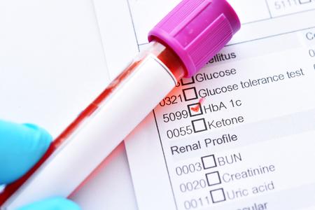 Photo pour Blood sample tube with laboratory requisition form for HbA1c test - image libre de droit