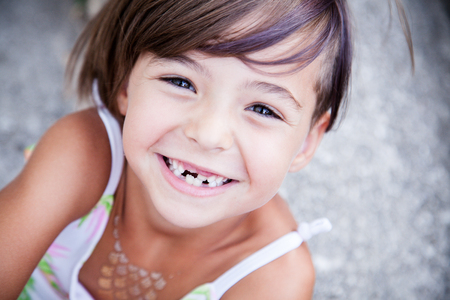 Photo pour Little girl with big smile and missing milk teeth - image libre de droit