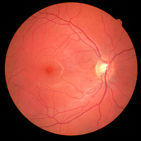 Foto de left eye's retinal image with macula, vessels and optic disc isolated view on a black bacground - Imagen libre de derechos