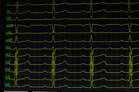 Foto de Screen of electrocardiograph device showing twelve yellow ECG cardiography heart rythm leads. - Imagen libre de derechos