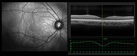 Foto de Ophthalmic test - OCT optical coherence tomography measurement. SLO Scan view of the macula in retina with vessels - Imagen libre de derechos
