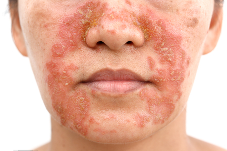 Foto de Seborrheic Dermatitis In adult face isolated white background - Imagen libre de derechos