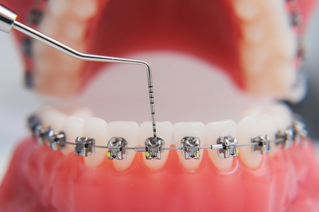 Foto de macro photography shows how the braces are arranged - Imagen libre de derechos