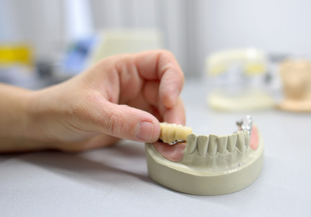 Foto de Closeup of dental technician working - Imagen libre de derechos