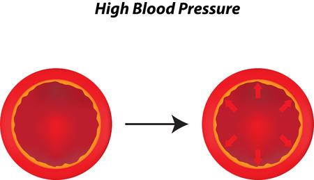 Illustration pour High Blood Pressure - image libre de droit