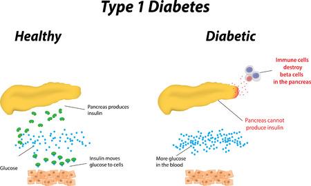 Illustration for Type 1 Diabetes - Royalty Free Image