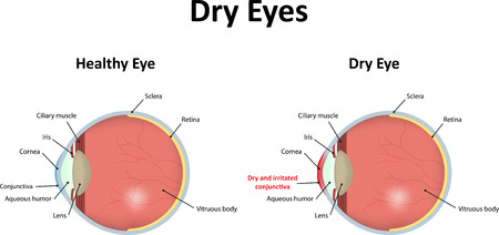 Photo pour Dry Eyes - image libre de droit