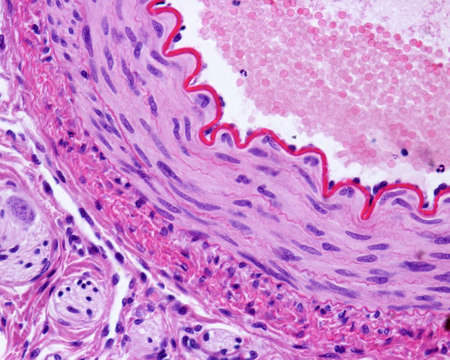 Foto de Light micrograph of a cross-sectioned muscular artery, showing a thick and wavy internal elastic lamina, a middle layer with smooth muscle fibers, and an outer connective tissue adventitia. Hematoxylin & eosin stain  - Imagen libre de derechos
