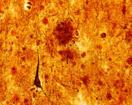Foto de Light micrograph of a senile plaque stained with a silver impregnation. A pyramidal neuron with a neurofibrillary tangle also can be seen. Both alterations are seen in the Alzheimer disease. - Imagen libre de derechos