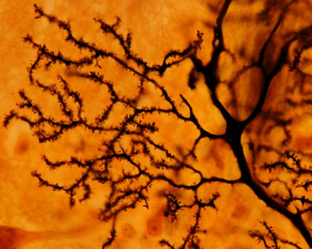 Foto de Dendritic tree of a Purkinje neuron stained with the silver Golgi method. The dendrite surface is full of small dendritic spines. - Imagen libre de derechos