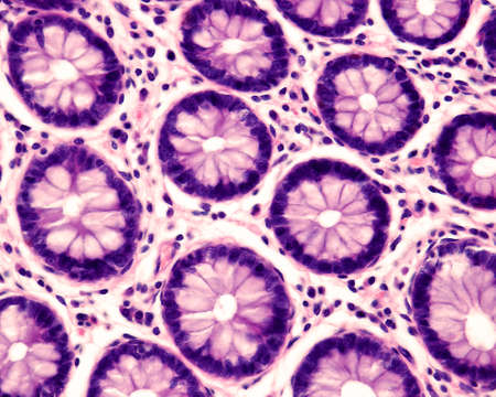 Foto de Cross section of intestinal glands (crypts of Lieberkühn) showing mucous goblet cells. Human colon. - Imagen libre de derechos