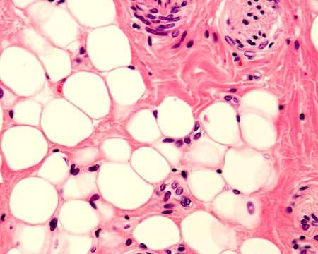 Foto de Small adipocyte lobule located in a connective tissue. A small nerve is located in the upper right corner. Light micrograph. H&E stain. - Imagen libre de derechos